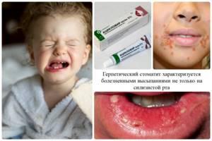 стоматит у ребенка 5 лет симптомы лечение