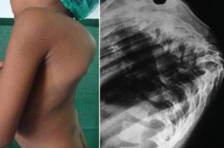 туберкулез костей у ребенка симптомы и лечение
