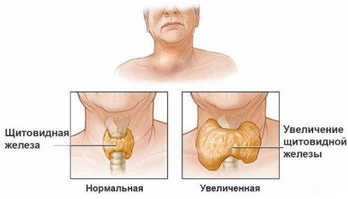 увеличение щитовидной железы у ребенка симптомы и лечение