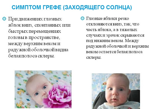 вчд у ребенка 2 года симптомы и лечение