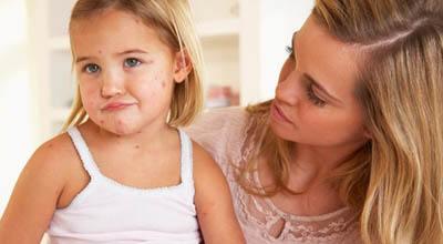 ветрянка у годовалого ребенка симптомы и лечение