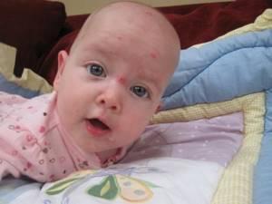 ветрянка у грудного ребенка симптомы и лечение