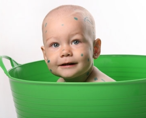 ветрянка у ребенка 2 года симптомы и лечение
