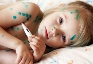 вирус герпеса симптомы и лечение у ребенка