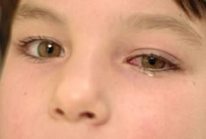 вирусный конъюнктивит симптомы и лечение у ребенка
