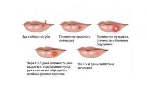 внутренний герпес у ребенка симптомы и лечение