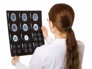 внутричерепное давление симптомы и лечение у ребенка 9 лет