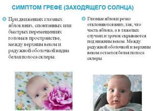 внутричерепное давление у ребенка 2 года симптомы и лечение