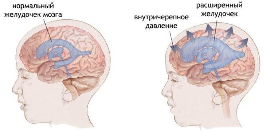 внутричерепное давление у ребенка 2 лет симптомы и лечение