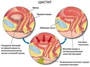 воспаление мочевого пузыря симптомы и лечение у ребенка