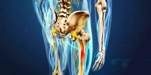 воспаление седалищного нерва у ребенка симптомы и лечение
