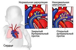врожденный порок сердца у ребенка симптомы и лечение
