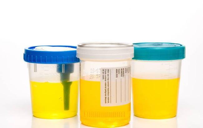 взвесь в моче у ребенка причины симптомы лечение