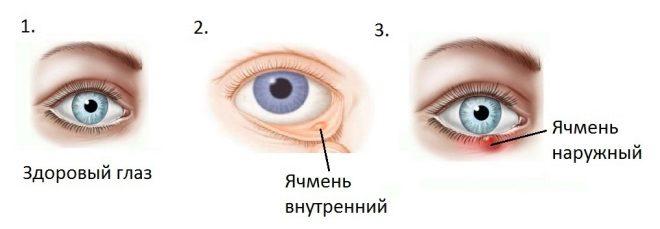 ячмень на глазу у ребенка симптомы и лечение