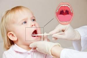 аденоидный кашель у ребенка симптомы и лечение доктор комаровский