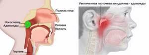 аденоиды у ребенка симптомы и лечение в нос