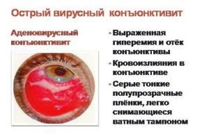 аденовирус у ребенка симптомы и лечение