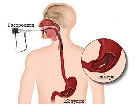 аэрофагия симптомы и лечение у детей