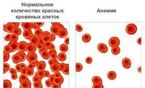 анемия ноги симптомы и лечение
