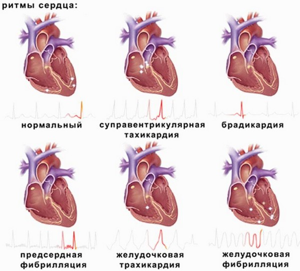аритмия у детей симптомы и лечение