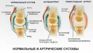 артрит коленного сустава симптомы и лечение у ребенка 3 лет