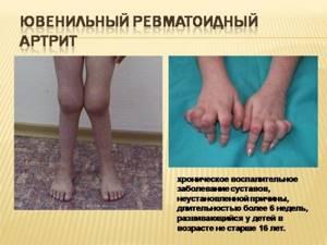 артрит коленного сустава симптомы и лечение у ребенка 9 лет