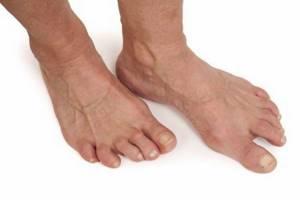 артрит ноги симптомы и лечение