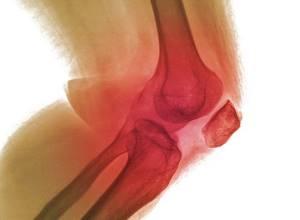 артрит симптомы лечение ноги