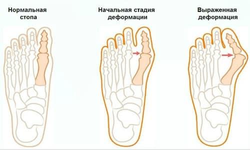 артрит сустава большого пальца ноги симптомы и лечение