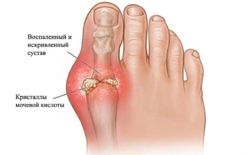артроз большого пальца ноги симптомы лечение