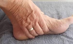 артроз стопы ноги симптомы и лечение в домашних условиях