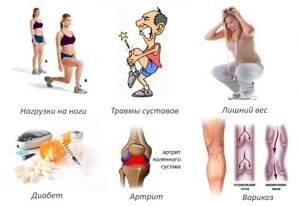 артроз сустава большого пальца ноги симптомы и лечение