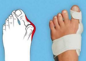 артроз второго пальца ноги симптомы лечение