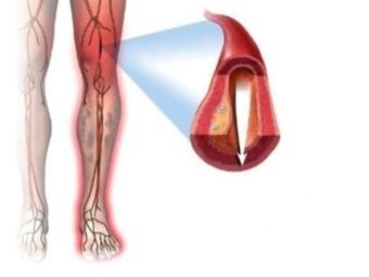 атеросклероз артерий икры ноги симптомы и лечение