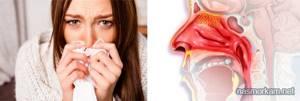 атрофический ринит у детей симптомы лечение