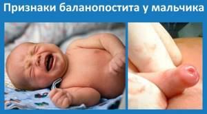 баланопостит симптомы лечение у детей