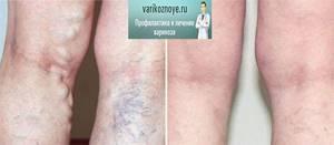 боль в ногах при варикозе симптомы лечение
