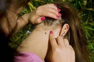 боррелиоз симптомы лечение у детей