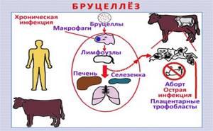 бруцеллез у детей симптомы и лечение