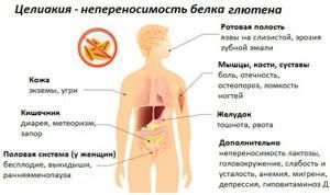 целиакия у детей симптомы диагностика лечение