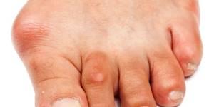 что такое подагра на ногах у женщин симптомы и лечение
