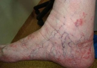 дерматит симптомы и лечение народными средствами на ногах