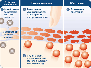 дерматит симптомы и лечение у взрослых на ногах