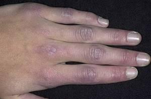 дерматомиозит у детей симптомы и лечение
