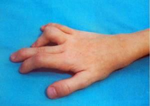 детский артрит симптомы лечение