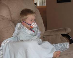 детский круп симптомы лечение