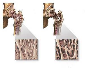 детский остеопороз симптомы и лечение