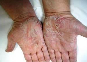 экзема ноги симптомы и лечение