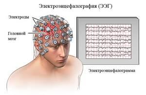 эпилепсия у детей симптомы и лечение