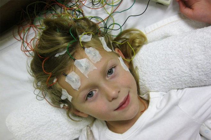 эпилепсия у детей симптомы причины лечение